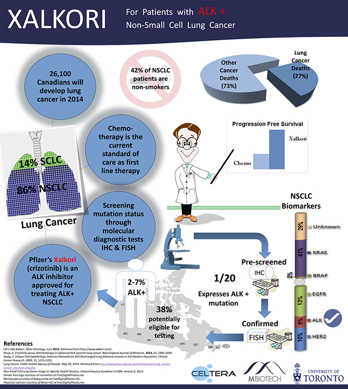 For Patients with ALK + Non-Small Cell Lung Cancer (Infographic)